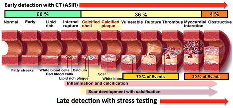 Facts inner imaging could you be at risk of coronary artery disease and not know it ccuart Choice Image